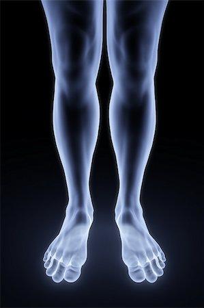 feet x-ray Stock Photo - Budget Royalty-Free & Subscription, Code: 400-04784379