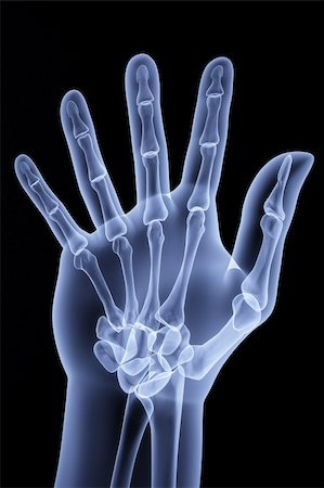 the human hand shows the number of fingers under the X-rays Stock Photo - Budget Royalty-Free & Subscription, Code: 400-04784370