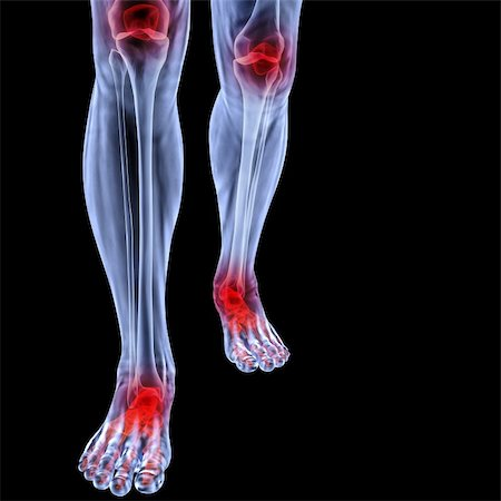 Human feet under X-rays. joints are shown in red. isolated on black. Stock Photo - Budget Royalty-Free & Subscription, Code: 400-04900046
