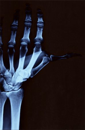Left hand radiography with wrist and upper arm Stock Photo - Budget Royalty-Free & Subscription, Code: 400-04980840
