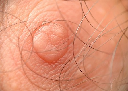 rgbspace - Macro shot of skin texture and male human nipple with hair Stock Photo - Budget Royalty-Free & Subscription, Code: 400-05250165
