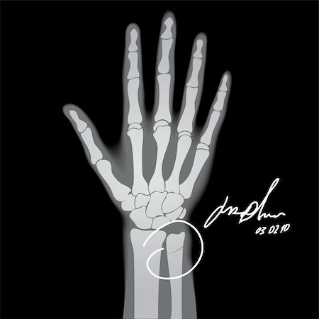 Vector illustration of brooken hand. X-ray. Stock Photo - Budget Royalty-Free & Subscription, Code: 400-05276797
