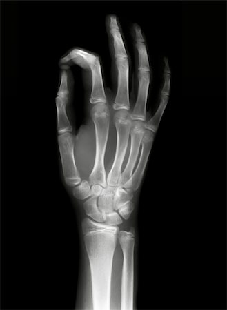 OK sign on x-ray black and white film Stock Photo - Budget Royalty-Free & Subscription, Code: 400-05312933