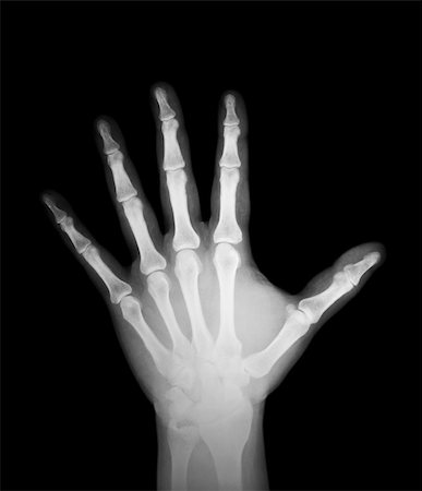 x-ray of human hand Stock Photo - Budget Royalty-Free & Subscription, Code: 400-05889176