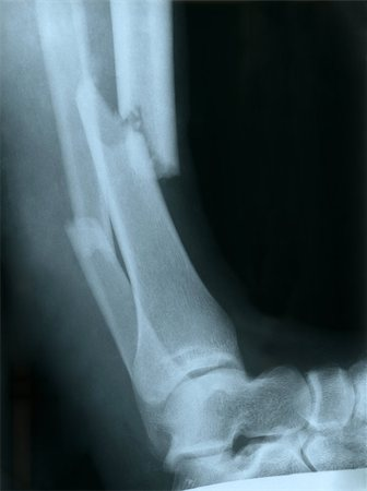 X-ray of a broken leg Stock Photo - Budget Royalty-Free & Subscription, Code: 400-06642073