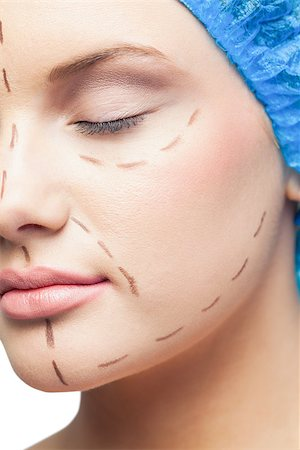 Close up on cute young patient with dotted lines on the face before surgery Stock Photo - Budget Royalty-Free & Subscription, Code: 400-07060395
