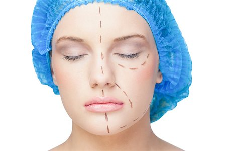 Peaceful young patient with dotted lines on the face before surgery Stock Photo - Budget Royalty-Free & Subscription, Code: 400-07060390