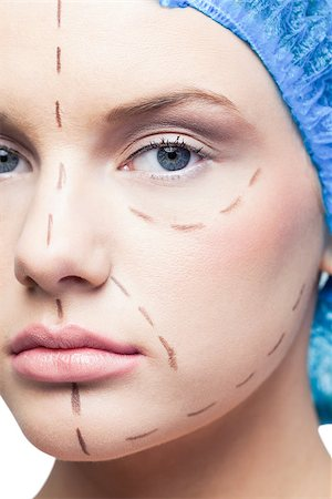 Close up on relaxed young patient with dotted lines on the face before surgery Stock Photo - Budget Royalty-Free & Subscription, Code: 400-07060392