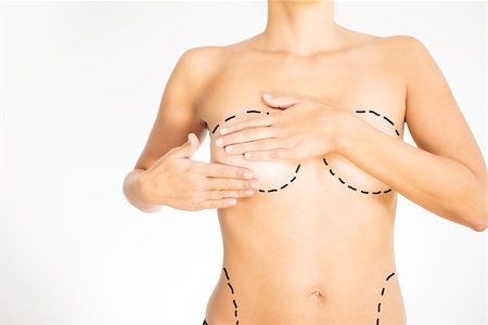 Naked torso of a young woman concealing her breasts with her hands marked for plastic surgery with dotted lines encircling the bosom and hip Stock Photo - Budget Royalty-Free & Subscription, Code: 400-07314519