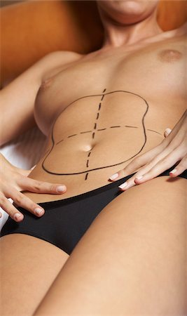 Woman with Markings for Liposuction Stock Photo - Premium Royalty-Free, Code: 600-01073340