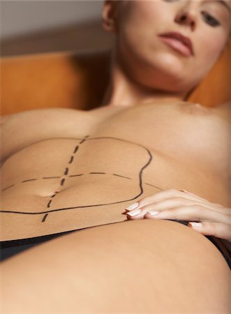 Woman with Markings for Liposuction Stock Photo - Premium Royalty-Free, Code: 600-01073341