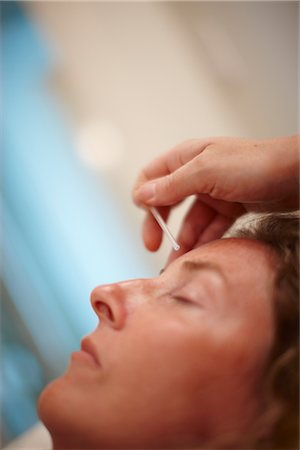 Woman Receiving Acupuncture Stock Photo - Premium Royalty-Free, Code: 600-02833185