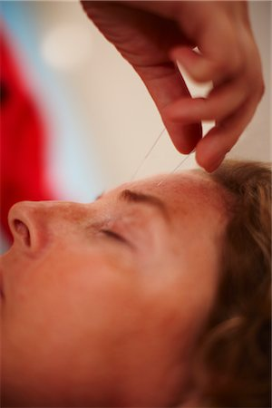 Woman Receiving Acupuncture Stock Photo - Premium Royalty-Free, Code: 600-02833187