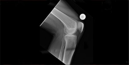 x-ray mans knee replacement pre op. Stock Photo - Premium Royalty-Free, Code: 618-06503596