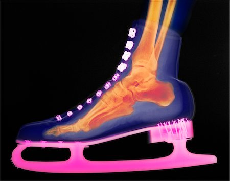 colorized x-ray of a foot in an ice skate Stock Photo - Premium Royalty-Free, Code: 6106-05492635