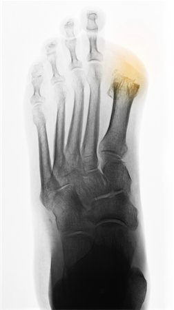 x-ray diabetic foot with toe amputations Stock Photo - Premium Royalty-Free, Code: 6106-05417468