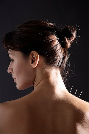 acupuncture needles in woman's neck Stock Photo - Premium Royalty-Free, Code: 6106-06309667