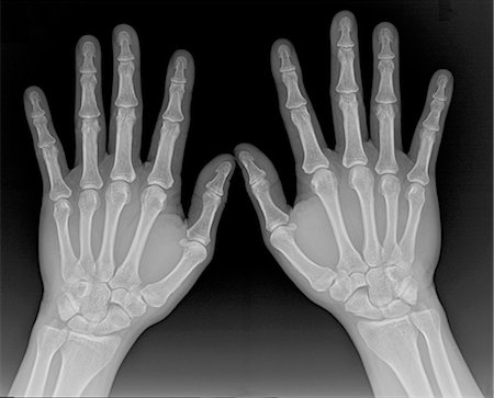 X Ray of hands, male Stock Photo - Premium Royalty-Free, Code: 6106-06401709