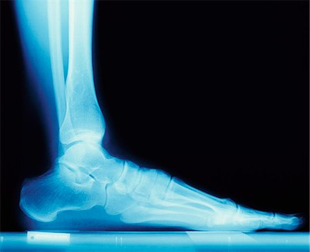 X Ray of a Human Foot Stock Photo - Premium Royalty-Free, Code: 6106-07005142