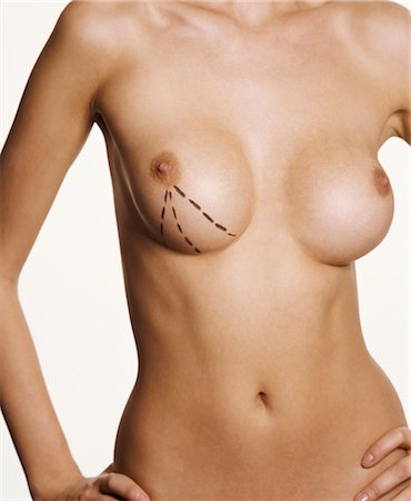 Naked Woman with Markings Around Her Breast Stock Photo - Premium Royalty-Free, Code: 6106-07005432