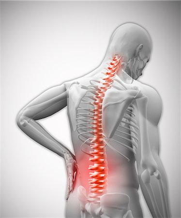 Digital human with highlighted vertebrae in pain Stock Photo - Premium Royalty-Free, Code: 6109-06685039