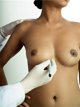 Cosmetic surgeon marking womans breasts Stock Photo - Premium Royalty-Free, Code: 6114-06589891
