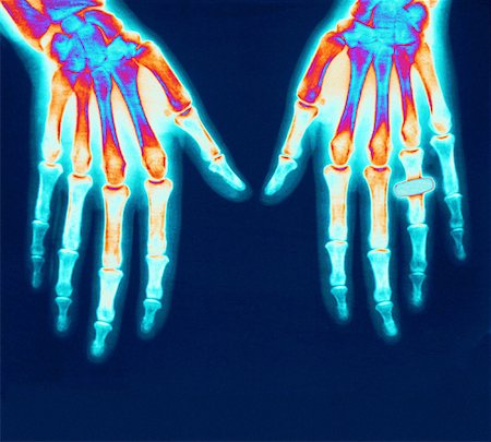 X ray of Hands Stock Photo - Premium Royalty-Free, Code: 621-00738531
