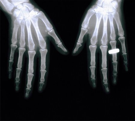 X ray of Hands with Wedding Band Stock Photo - Premium Royalty-Free, Code: 621-00738554