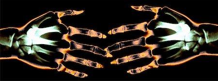 X ray of Hands Touching Stock Photo - Premium Royalty-Free, Code: 621-00738580