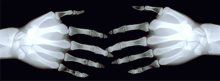X ray of Hands Stock Photo - Premium Royalty-Free, Code: 621-00738599