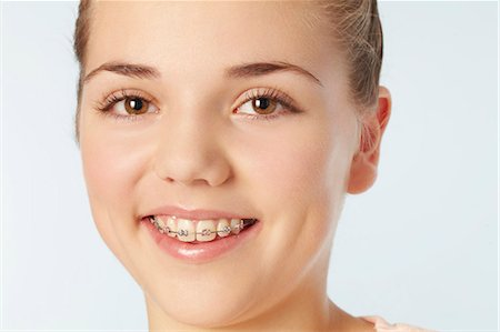 preteen girls faces photo - Close up of smiling girl in braces Stock Photo - Premium Royalty-Free, Code: 649-06533074