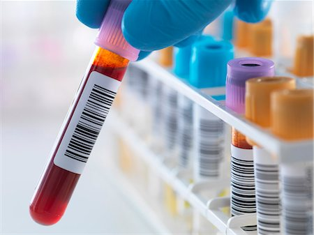 A blood sample being held with a row of human samples for analytical testing including blood, urine, chemistry, proteins, anticoagulants and HIV in lab Stock Photo - Premium Royalty-Free, Code: 649-07560431