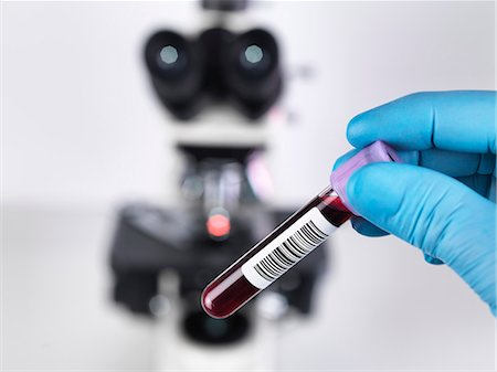 Laboratory scientist holding a blood sample with a upright compound microscope in the background Stock Photo - Premium Royalty-Free, Code: 649-07560485