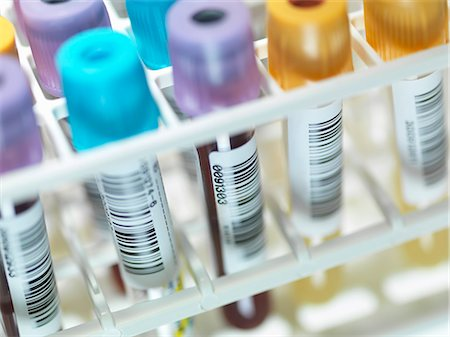 A row of human blood and chemistry samples awaiting testing in the lab Stock Photo - Premium Royalty-Free, Code: 649-07710328