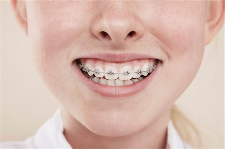 A smiling girl with braces on her teeth, close-up of mouth Stock Photo - Premium Royalty-Free, Code: 653-07234057