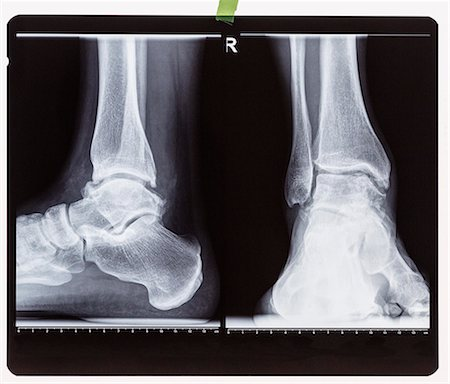 X-ray of the right foot ankle joint Stock Photo - Premium Royalty-Free, Code: 653-08633973