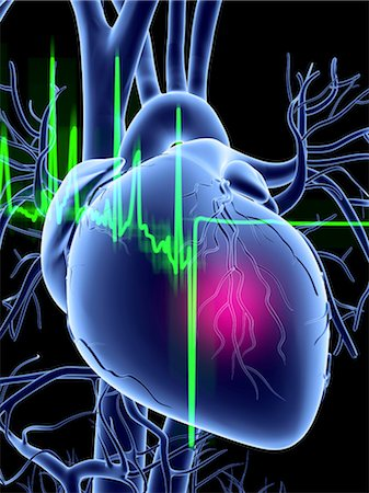 Heart attack and ECG trace Stock Photo - Premium Royalty-Free, Code: 679-04249829
