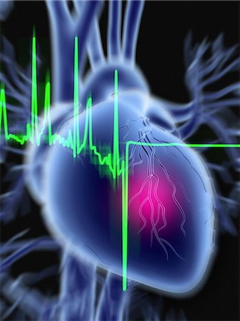 Heart attack and ECG trace Stock Photo - Premium Royalty-Free, Code: 679-04249830