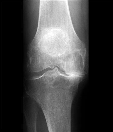 Arthritis of the knee, X-ray Stock Photo - Premium Royalty-Free, Code: 679-04249940