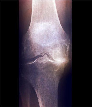 Arthritis of the knee, X-ray Stock Photo - Premium Royalty-Free, Code: 679-04249941