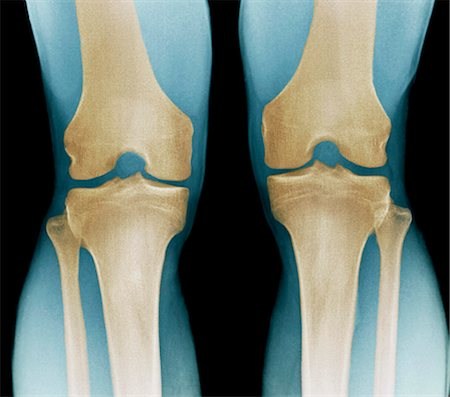 Normal knees, X-ray Stock Photo - Premium Royalty-Free, Code: 679-04249955