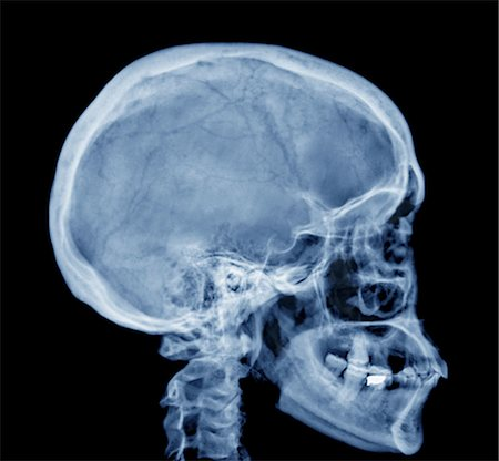 Normal skull, X-ray Stock Photo - Premium Royalty-Free, Code: 679-04249958