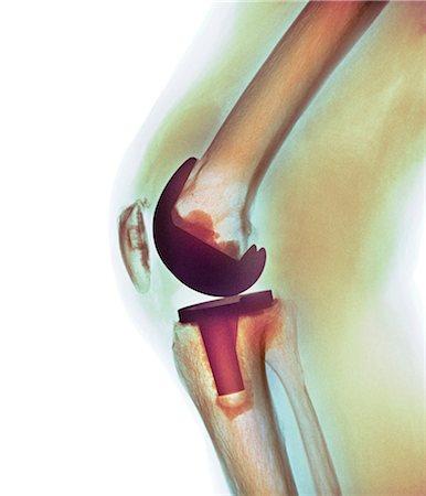 Knee replacement, X-ray Stock Photo - Premium Royalty-Free, Code: 679-04250077
