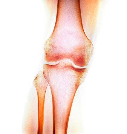 Normal knee, X-ray Stock Photo - Premium Royalty-Free, Code: 679-04250081