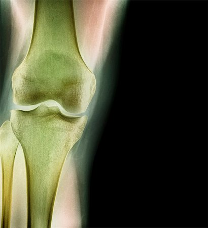 Normal knee, X-ray Stock Photo - Premium Royalty-Free, Code: 679-04250083