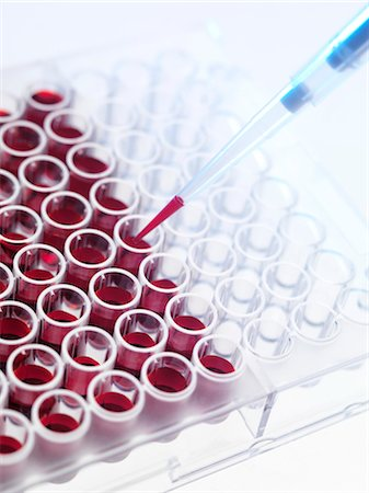 Blood samples Stock Photo - Premium Royalty-Free, Code: 679-04250555