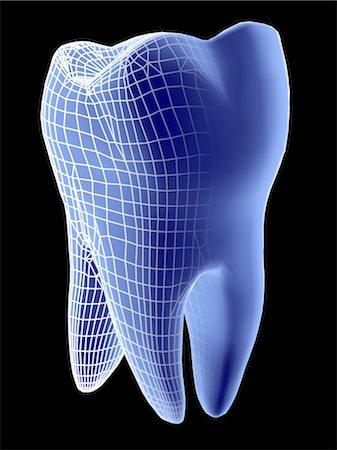 dentistry - Molar tooth Stock Photo - Premium Royalty-Free, Code: 679-04250925