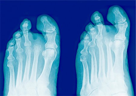 Amputated toe, X-rays Stock Photo - Premium Royalty-Free, Code: 679-04251384