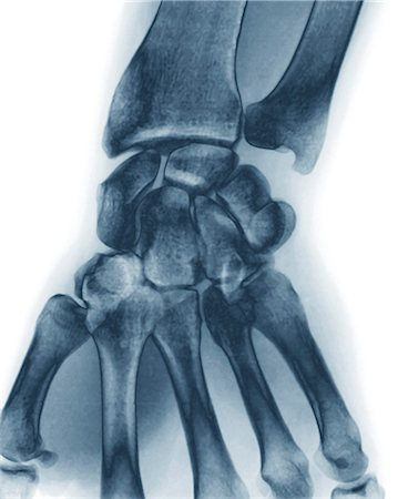 Normal wrist, X-ray Stock Photo - Premium Royalty-Free, Code: 679-05797288