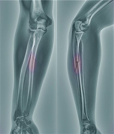 Broken arm, X-ray Stock Photo - Premium Royalty-Free, Code: 679-05797301